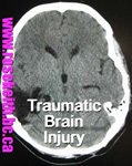 click for Rose Keith talking about brain injury litigation